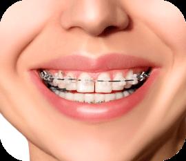 clear braces in huntersville