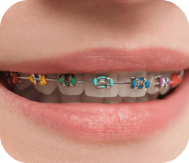 color braces in huntersville