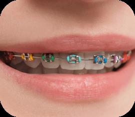 color braces in huntersville