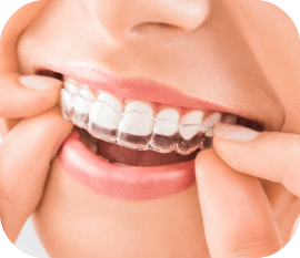 invisalign in huntersville