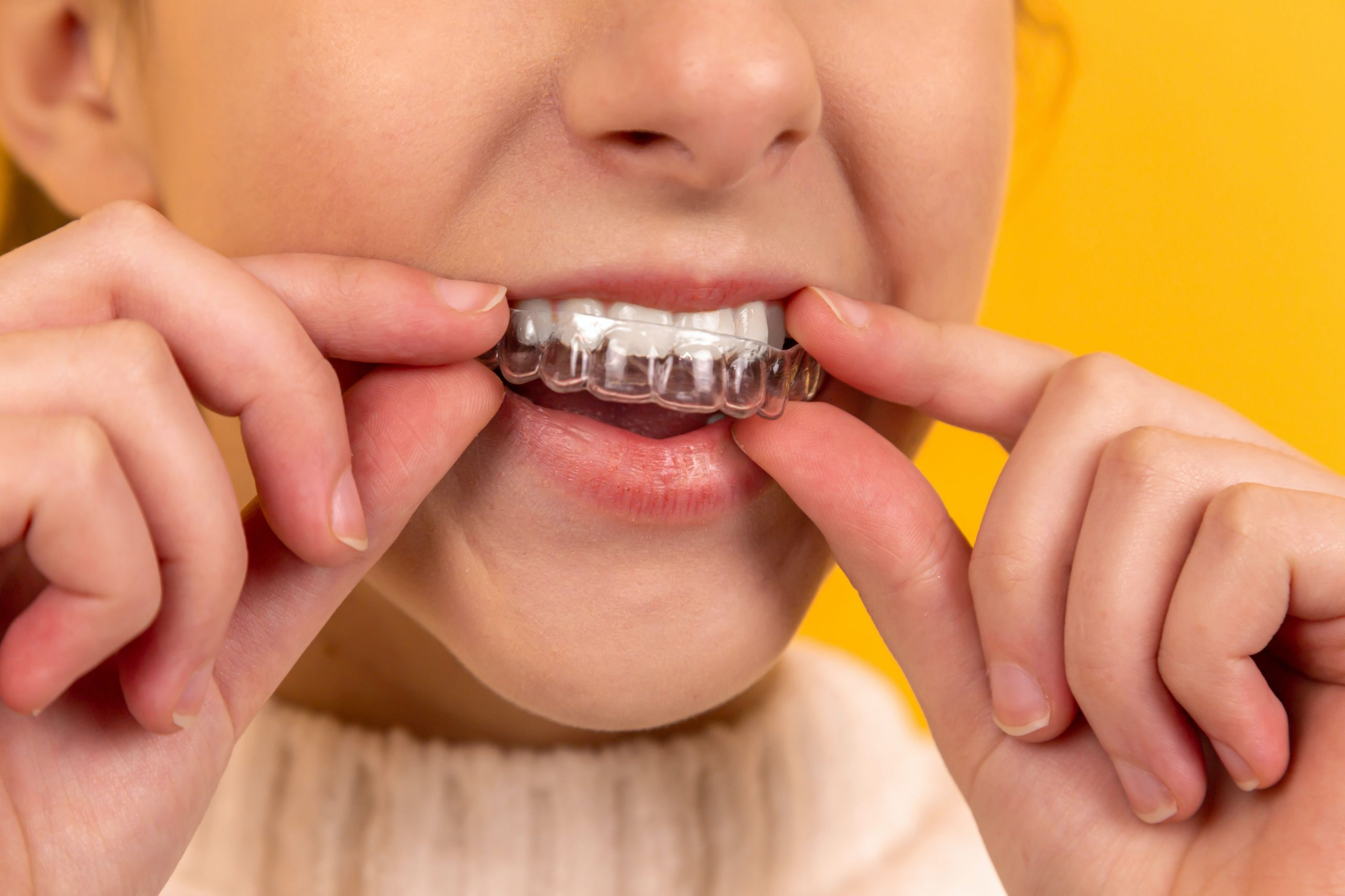 Which is better braces or Invisalign?